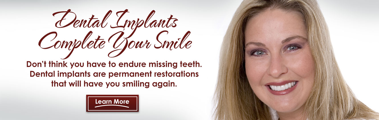 Dental Implants Dentist Spring TX