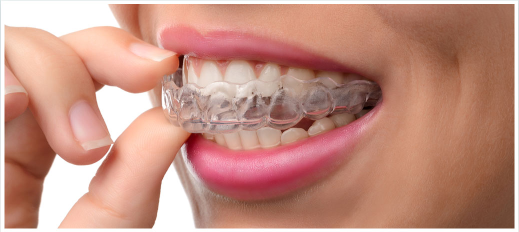 Dental Braces Dentists Spring TX - Short Term Ortho