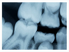 Digital Dental Xrays Spring TX